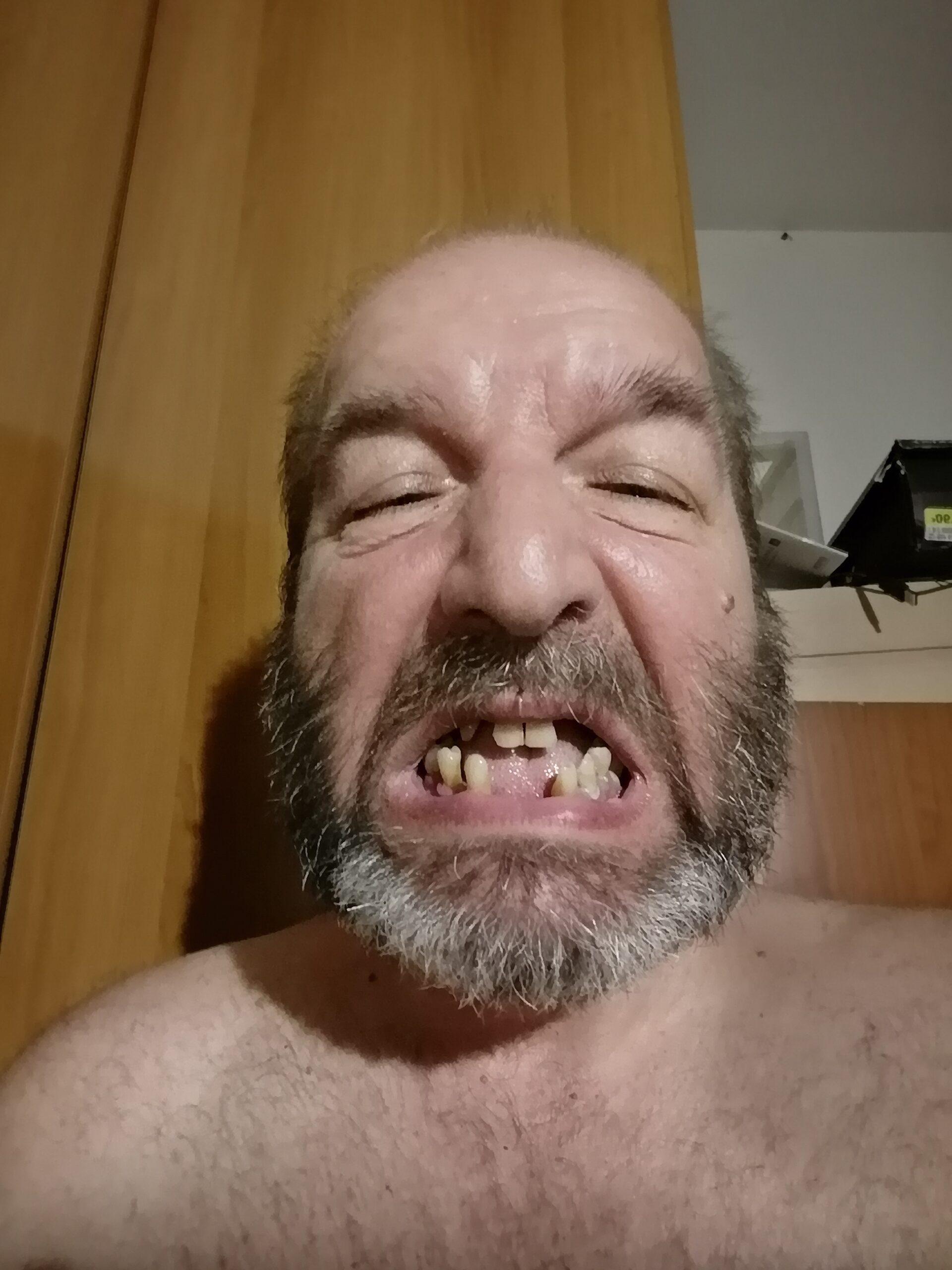 dentiera urgente